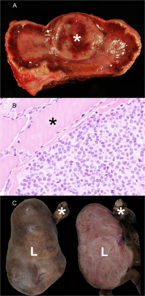 Endocrine and genital neoplasia in wild felids.A) Adrenal gland, tiger, 19 years, male (animal no 27). Unilateral pheochromocytoma (asterisk). B) Parathyroid gland, leopard, 9 years, female (animal no. 7). Parathyroid gland adenoma characterized by a solid growth pattern. The parathyroid gland adenoma displayed a capsule and compresses adjacent normal follicles of the thyroid gland (asterisk). H&E-staining. C) Ovary, leopard, 17 years, female (animal no. 13). The left part of the picture shows an encapsulated, well demarcated leiomyoma (L) attached to normal ovary tissue (asterisk). The right part of the picture demonstrates the firm, nodular cut surface of the leiomyoma (L) that is characterized by irregularly arranged interwoven tissue bundles.