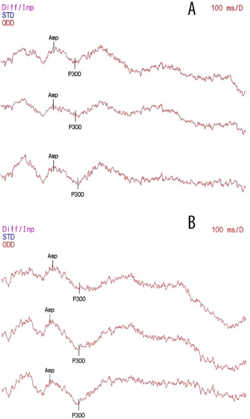 Samples of auditory P300 for before (A) and after (B) modafinil treatment.