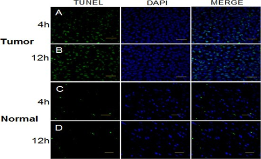 TUNEL assay to detect apoptosis in glioma and normal tissue at times of high and low expression of Per1 following a single dose of x-radiation (15 Gy)Bar, 50 μm.