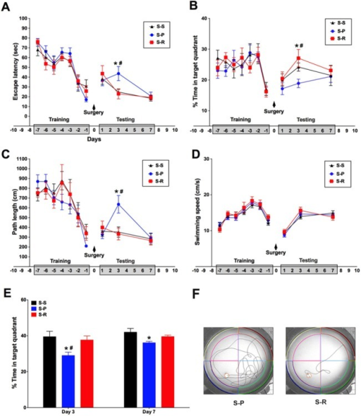 RNase treatment reduced cognitive impairment induced by unilateral nephrectomy surgery in aged mice.The MWM was used for the training of spatial memory formation in aged mice for 7 days before experiments and followed by the postoperative testing of reversal learning for 7 days. A, Escape latency during the experiments. B, Percentage of time spent in the target quadrant during the experiments. C, Swimming path length during the experiments. D, Swimming speed during the experiments. E, The probe trial test at day 3 and day 7 after surgery. F, Representative swim paths for S-R and S-P group at day 3 after surgery. The above data are shown as mean ± SEM; n = 10 for training; n = 8 for testing. *P<0.05 v.s. S-S group, #P<0.05 v.s. S-R group. S-S, sham surgery plus placebo; S-P, surgery plus placebo; S-R, surgery plus RNase.