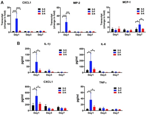 RNase treatment decreased cytokine expression in the hippocampus and serum after unilateral nephrectomy in aged mice.A, Hippocampal cytokine mRNA. At day 1, day 3 and day 7 after surgery, cytokine mRNA levels were measured using qRT-PCR. B, Serum cytokine protein expression. At day 1, day 3 and day 7 after surgery, cytokine proteins were assayed using Luminex. Data are presented as mean ± SEM (panel A, n = 4 per group; panel B, n = 6 per group). *P<0.05, **P<0.01, ***P<0.001, ****P<0.0001. CXCL1, chemokine (C-X-C mortif) ligand 1; MIP-2, macrophage inflammatory protein-2; MCP-1, monocyte chemotactic protein-1; IL, interleukin; TNF, tumor necrosis factor; S-S, sham surgery plus placebo; S-P, surgery plus placebo; S-R, surgery plus RNase.