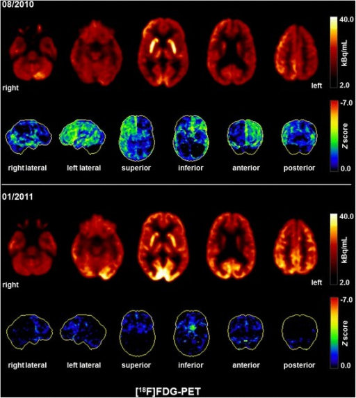 Fluorodeoxyglucose positron emission tomography (FDG-PET) findings. The initial FDG-PET scan (08/2010) depicted a global cortical hypometabolism of the left hemisphere, and, to a lesser extent, also of the right hemisphere; on the right side, hypometabolism was primarily located in the temporal lobe. Cerebellar hypometabolism was pronounced on the right side (most likely indicating crossed cerebellar diaschisis). The lower FDG-PET scan was acquired after successful immunosuppressive therapy (01/2011), indicating a nearly regular cerebral metabolism. A slight frontal hypometabolism remained most likely secondary due to frontal accentuated atrophy. Pronounced occipital metabolism is explainable by scan acquisition with open eyes. Both FDG-PET scans were performed at the Department of Nuclear Medicine of the University Hospital Freiburg after injection of 240 MBq 18FDG each (Gemini TF64 PET scanner, Philips Healthcare, The Netherlands)