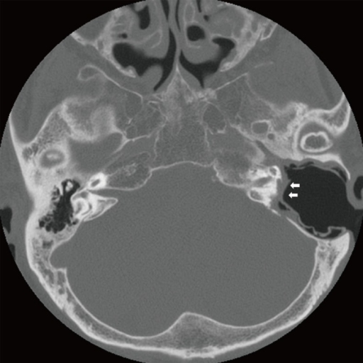 Computed tomography of patient No. 2 showing all semicircular canals and vestibular destructions. Note the absence of the facial nerve in the tympanic and mastoid segment with a combined posterior cranial base defect (arrows).