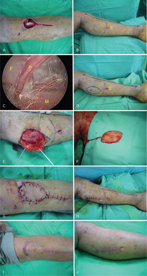 Endoscopic-assisted harvesting of pedicled fasciocutaneous flap. A man aged 20 years had a soft tissue defect with exposure of bone and tendon at the left pretibia region (A). After marking the border of the temporary-designed flap on the skin, a 1-cm endoscopic incision was made. E: endoscopic incision (B). Under endoscopy, a perforator was identified under direct vision. F: fascia, P: perforator, M: muscle (C). The exact location of the perforator was marked on the skin, and the flap was also designed and marked. E: endoscopic incision (D). The perforator was harvested with preservation of its perforator pedicle (E and F). The flap advancement was done (G), and the skin defect of the donor site was closed (H). Postoperatively, the wounds in recipient site (I) and donor site (J) both healed well, and the fasciocutaneous flap survived well.