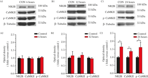 Increased expression level of NR2B, CaMKII and p-CaMKII after ischemia.A: Absence of change in these proteins at 6 hours after ischemia (NR2B, 0.97±0.18, P>0.05, n = 4; CaMKII, 0.97±0.09, P>0.05, n = 4; p-CaMKII, 1.05±0.04, P>0.05, n = 4). B: At 12 hours after ischemia, a slight but not significant increase in the expression of NR2B and CaMKII was detected (NR2B, 1.13±0.26, P>0.05, n = 4; CaMKII, 1.17±0.14, P>0.05, n = 4). No increases of p-CaMKII was detected (0.94±0.07, P>0.05, n = 4). C: At 24 hours after ischemia, a significant increase in the NR2B, CaMKII and p-CaMKII was detected (NR2B, 1.65±0.20, P<0.05, n = 4; CaMKII, 1.16±0.13, P<0.05, n = 3; p-CaMKII, 1.62±0.31, P<0.05, n = 4). Data represents mean±SEM. Statistic differences were compared using one-way ANOVA. CON: control, h: hours.