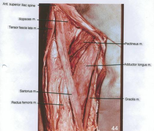 anterior superior iliac spine; iliopsoas muscle; tensor | open-i, Human Body