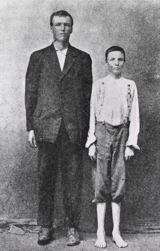 <p>Two brothers from Jones County, Miss., aged 17 (weight 156 lbs.) and aged 18 (weight 74 lbs.), the latter, on right, heavily enfected.</p>