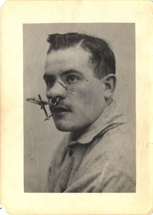<p>Black and white photograph of an injured soldier with facial wounds to the nose.  A metal support attachment extends from inside the nostrils to the mouth.</p>