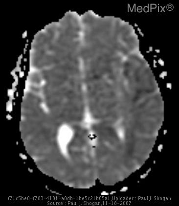 Corresponding axial ADC values are reduced from normal brain parenchyma.