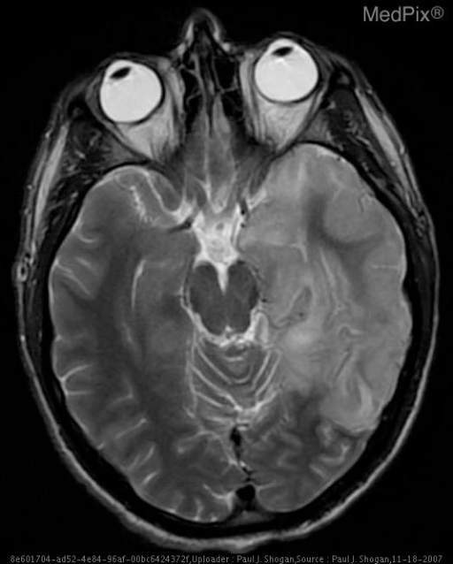 Axial T2 weighted image demonstrates increased signal intensity and swelling of the gray matter of the left temporal lobe with mild mass effect, evidenced by effacement of the Ambient cistern at the left medial temporal lobe and midbrain.  Additionally, there is mild increased signal intensity of the right medial temporal lobe.