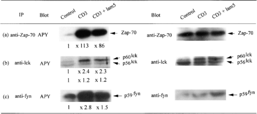 Inhibition by soluble laminin 5  (lam5) of early kinases phosphorylation  events activated via the CD3–TCR complex.  Jurkat cells at 20 × 106/ml in RPMI 5% FCS  were incubated with Abs at 37°C for 2.5 min,  solubilized, and lysates were immunoprecipitated with (a) a pAb anti–Zap 70, (b) a pAb  anti-lck, (c) a pAb anti-fyn. After SDS-  PAGE separation and electrotransfer onto  Immobilon P membrane, proteins were incubated with HRP conjugated anti-phosphotyrosine Ab (APY) followed by ECL. For densitometric analysis of APY immunoblotting,  control values were reduced to 1 in order to  compare signals after activation. Values are  mentioned under each lane. For reprobing, the membranes were submerged in stripping buffer, blocked and immuno-detected with (a)  pAb anti–Zap 70, (b) pAb anti-lck, and (c) pAb anti-fyn was performed. Reactions were revealed by incubating membranes with GAR  HRP followed by ECL. Laminin 5 (lam5) was added in soluble form at 1 μg/ml for Zap 70 and fyn analysis and 5 μg/ml for lck analysis.