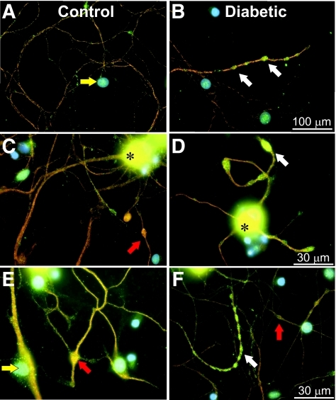 Axons of neurons of STZ-diabetic rats exhibit swellings that include adducts of 4-HNE. A, C, and E: Merged immunofluorescent images stained for 4-HNE (green) and neuron-specific β-tubulin III (orange) at 4 days of sensory neuron culture from control rats (blue nuclei were stained with 4′,6-diamidino-2-phenylindole). Cells were grown in F12 + modified N2 defined medium with 10 mmol/l d-glucose and with 10 nmol/l insulin. B, D, and F: Merged immunofluorescent images of cultures from STZ-diabetic rats grown in F12 + modified N2 defined medium with 25 mmol/l d-glucose and without insulin. White arrows show 4-HNE adduct accumulation in axon swellings in STZ-diabetic neurons. Red arrows show β-tubulin III accumulation in rare swellings without 4-HNE. Yellow arrows indicate nonneurons. Asterisks indicates perikarya strongly labeled for 4-HNE. (A high-quality digital representation of this figure is available in the online issue.)