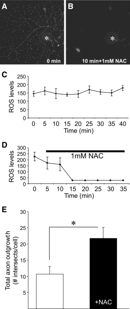 Treatment with antioxidant NAC lowers ROS levels in axons and elevates axon outgrowth. ROS levels, measured using DHR123, in axons before (A) and after (B) 10 min of treatment with 1 mmol/l NAC (asterisk indicates perikarya of neuron). C and D: Real-time imaging data of ROS levels in axons before (C) and after (D) 1 mmol/l NAC treatment. Values are the means ± SE, n= 4–6 axons. E: Total axon outgrowth for STZ-diabetic neurons cultured for 24 h with (■) or without (□) 1 mmol/l NAC. Values are the means ± SE, n= 3 replicate cultures. * P < 0.05.