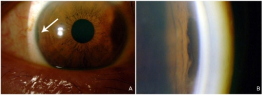 A Colored Slit Lamp Photograph Showing A Dark Pigment Open I