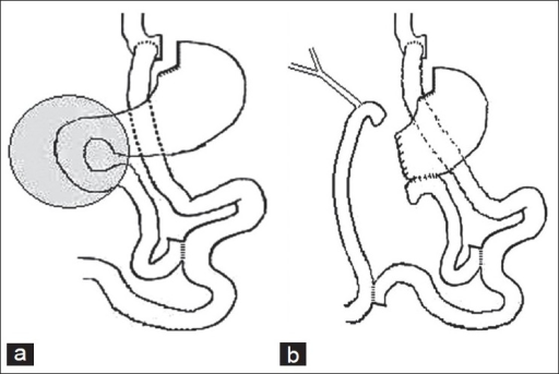Gastrointestinal Anatomy Following Roux En Y Gastric By Open I