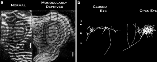a Ocular dominance plasticity in non-human primates following monocular deprivation, according to autoradiographic visualization of radiolabel injected into one eye. Adapted from Hubel, Levay and Weisell, 1977. b Examples of geniculocortical axon arbor structures from cats with monocular deprivation. Axons from the closed eye and open eye pathways are shown. Adapted from Antonini and Stryker, 1993