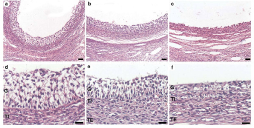 Microphotography of the follicular wall. Panel a and d correspond to low and higher magnification of the small antral follicle wall. Panels b and e represent preovulatory follicle wall. Panels c and f are representatives images of the cystic follicle wall. In a, b, and c, bars correspond to 50 μ m, and for d, e and f, bars = 20 μ m.