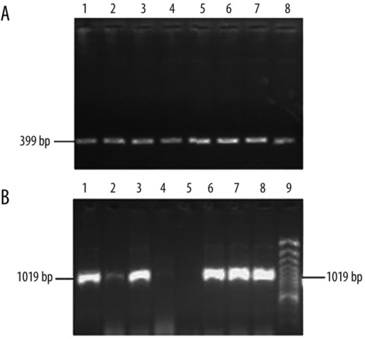 PCR products for the recombinant HCMV plasmids cloned from low-passage D2 and D3 isolates for UL145 (A) and UL136 (B). A band of 399 bp was detected in Plot A and a band of 1019 bp was found in Plot B. Lanes 1–4: DNA products of recombinant plasmids from D2 isolates; Lanes 5–8: DNA products of recombinant plasmids from D3 isolates. Lane 9 is a DNA marker.