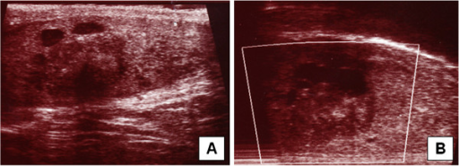 Sertoliform cystadenoma of the rete testis: On ultrasound examination the tumour arises from the rete testis (white arrow) and shows solid and cystic areas (black arrows, A + B).