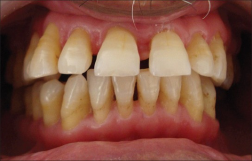 Normal Gingiva 1 Month After Chemotherapy Open I