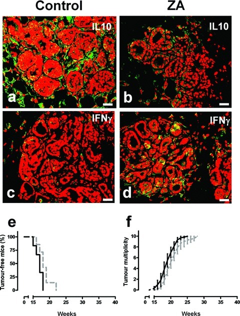ZA's antitumour effect is associated with its ability to reverse TAM polarization from M2 to M1, and is dependent on IFN-γ. Immunohistochemical analysis of representative mammary glands of 18-week-old control (A, C) versus ZA-treated (B, D) BALB-neuT mice. (A, B) Anti IL-10 staining (green) showed a clear reduction of IL-10 release in the tumour microenvironment of ZA-treated mammary tumours. (C, D) A significant enhancement of IFN-γ release (green) is observed in the microenvironment of ZA-treated mammary tumours. Scale bars, 40 μm. (E, F) ZA antitumour activity in BALB-neuT/IFN-γ KO. BALB-neuT/IFN-γ KO female mice received weekly i.v. courses of ZA (black line, n= 6) or saline (dotted grey line, n= 7). ZA-treated BALB-neuT/IFN-γ KO mice displayed the same tumour incidence (E) and tumour multiplicity (F) as control mice.