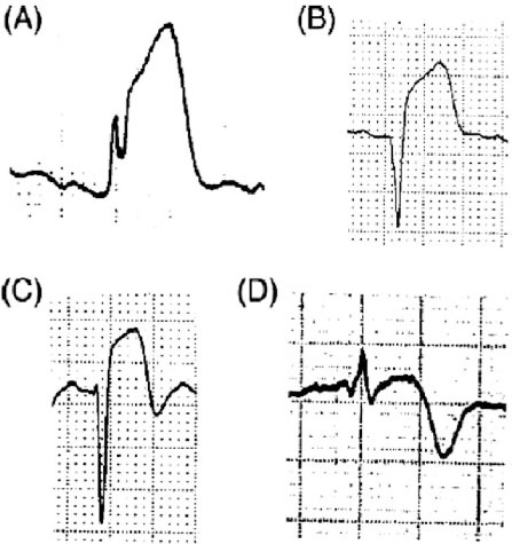 The ECG Patterns Of The Preinfarction Syndrome And Evol Openi Stunning Ecg Pattern