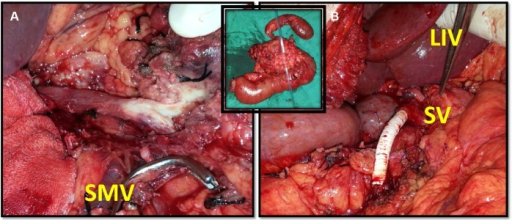 Operative photograph of Patient 3. Left panel: operative bed of the mobilized pancreas showing the portal vein, the superior mesenteric vein infiltrated with the tumor, and the superior mesenteric vein stump. Right panel: completed synthetic graft anastomosis. Inset panel: operative specimen photograph showing the posterior aspect of the pancreas and cannulated superior mesenteric vein segment.Abbreviations: LIV, liver; SMV, superior mesenteric vein stump; SV, splenic vein.
