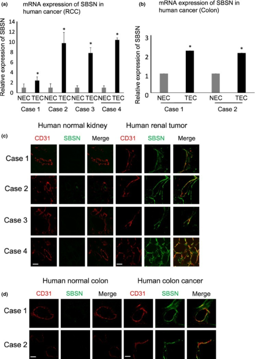 Suprabasin (SBSN) expression in human tumor endothelial cells (hTEC). (a, b) Relative SBSN mRNA expression levels in hNEC and hTEC evaluated by quantitative PCR (a, RCC, n = 4; b, colon tumor, n = 2). *P < 0.01 versus control; two-sided Student's t-test. (c, d) Clinical samples of renal cell carcinoma (RCC) and colon cancer-derived tumor endothelial cells were double-stained with anti-CD31 and anti-SBSN antibodies. Scale bar: 50 μm.