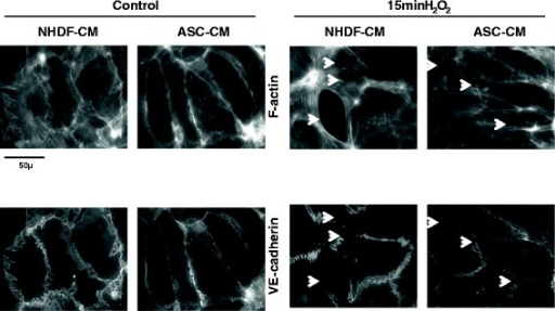 hASC-CM preserves microscopic HPAEC monolayer integrity. Preincubation of endothelial monolayers with hASC-CM suppressed H2O2-induced rearrangement of F-actin cytoskeleton and disintegration of peripheral adherens junctions. Arrows indicate the gaps appeared in previously intact monolayer in response to H2O2.