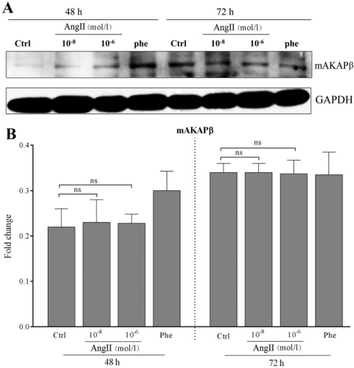 Expression of mAKAPβ in cardiomyocytes treated with angiotensin II (AngII) at different concentrations and for different periods of time. (A) Representative results of assays of mAKAPβ and GAPDH abundance in cardiomyocytes treated with AngII at different concentrations and different periods of time by western blot analysis. (B) The protein expression levels of mAKAPβ and GAPDH were analyzed by western blot analysis using polyclonal antibodies to mAKAPβ and GAPDH to quantify the expression in these groups. No statistically significant differences were observed in the expression of mAKAPβ between the controls and the cells treated with AngII at the designated concentration (all P>0.05). GAPDH was used as an equal loading control. The band value was quantified by densitometric analysis. Experiments were repeated at least 3 times. Data are expressed as the means ± SD in the corresponding bar graph and statistical significance was determined by the Student's t-test. Ctrl, control; Phe, phenylephrine; ns, not significant. Columns, mean; error bars, ± SD.