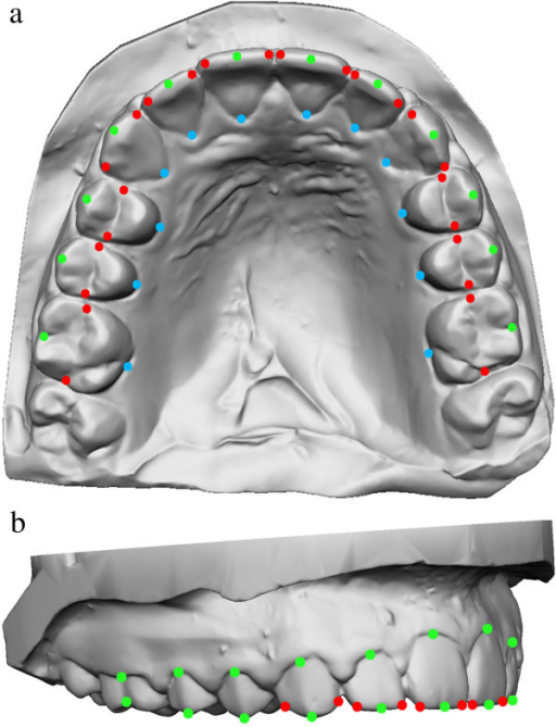 Maxillary dental arch showing distribution and position of 60 landmarks from occlusal (a) and lateral (b) perspectives.