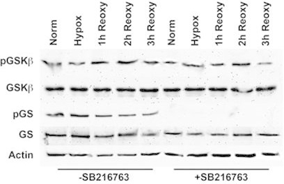 Western blot analysis of GSK-3β and GS phosphorylation in HLE-B3 cells in the presence or absence of SB216763. Total cell lysates were collected from >85% confluent HLE-B3 cell cultures that were incubated for 90 min in serum-free minimal essential media (MEM) containing either 12 µM SB216763 or 0.05% DMSO vehicle. Cells were then exposed to hypoxia for 3 h. At the end of the incubation period, the hypoxic medium was removed, and fresh, oxygenated serum-free MEM with SB216763 or dimethyl sulfoxide (DMSO) was added to the cultures. Cells were then placed in atmospheric oxygen for up to 3 h. Cultures were collected after continuous normoxic exposure (approximately 21% oxygen), hypoxic exposure (approximately 1% oxygen), or after reintroduction of atmospheric oxygen (approximately 21%) for 1, 2, or 3 h. Total cell lysates were analyzed by immunoblots using 25 µg of protein per lane. Antiactin was used to normalize the bands to ensure equivalent lane loading. Note: These data were taken from a prior publication [9] but are typical of SB216763 treatment. Note to reader: Look at the hypoxic exposure lanes to verify that glycogen synthase, a substrate of glycogen synthase kinase-3β (GSK-3β) treated with SB216763 fails to be phosphorylated. This is indicative of inactivation of GSK-3β catalytic activity that also prevents phosphorylation of β-catenin.