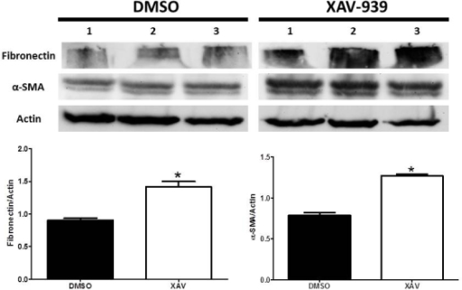 Western blot analysis of fibronectin and α-SMA in HLE-B3 cells treated with XAV939. HLE-B3 cells were cultured in 100 mm2 culture dishes and incubated with 1 µm XAV939 for 3 h in hypoxia. At the end of 3 h the total cell lysate was collected and analyzed with western blot. The experiment was repeated three times with independent cell populations and was quantified using ImageJ analysis. The asterisk (*) signifies there was a small but significant increase in fibronectin and alpha smooth muscle actin (α-SMA) in the XAV939-treated cells compared with the controls (p<0.05).