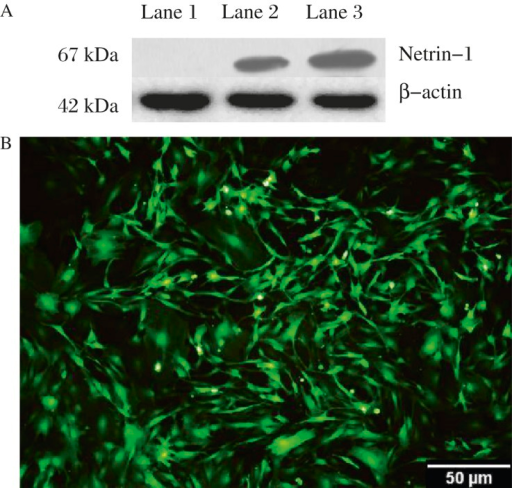 Netrin-1 and GFP are expressed in transfected BMSCs.A: Netrin-1 protein expression in BMSCs after Ad5-EGFP-Netrin-1 successful transfection. Netrin-1 is at 67 kDa.β-actin acted as the internal control. Lane 1: Ad5-EGFP; Lane 2: Ad5-Netrin-1-EGFP (50 particles/cell); Lane 3: Ad5-Netrin-1-EGFP (100 particles/cell). B: BMSCs infected with Ad5-EGFP-Netrin-1 at 24h, EGFP is expressed in most BMSCs (Scale bars  =  50 µm).