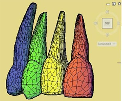 The three-dimensional model of the maxillary central to first premolar