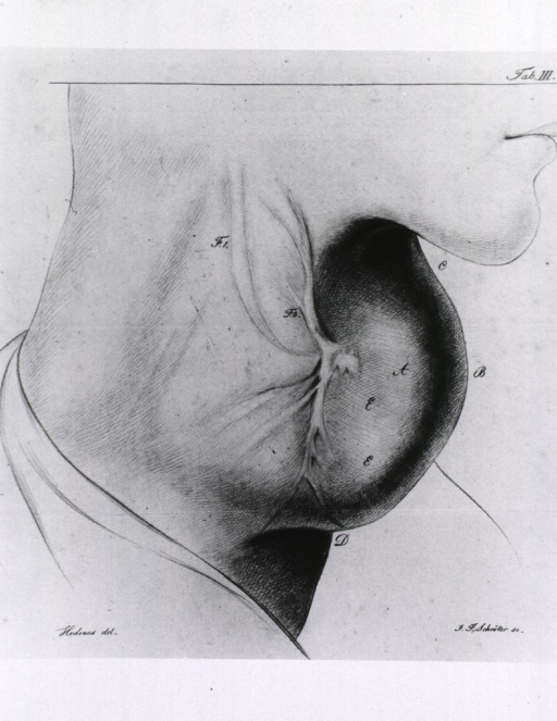 <p>Side view, nose to shoulder, of a male with goiter.</p>