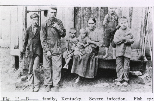<p>Seven-member family severly infected, in Kentucky.</p>