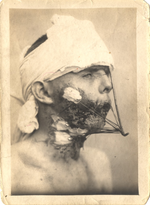<p>Black and white photograph of an injured soldier with massive facial wounds. The soldier's head is bandaged and there are wounds on the right side of the face and neck.   A metal support attachment extends downward from the head and attaches to supports that extend from the cheek and neck wounds. Bandages cover the spots where the instrument attaches to the face and neck.</p>