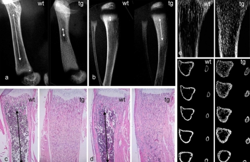 Impaired development of the marrow cavity and hematopoietic tissue in long bones of COL1-caPPR mice. (a) High resolution radiograms of the femurs of wt and tg mice at 2 wk. Note the marked difference in length of the marrow cavity (arrows). (b) High resolution radiograms of tibiae and fibulae of wt and tg mice at 2 wk. Note the different lengths of the primary spongiosa (arrows). (c and d) Histological sections of the distal metaphysis of the femur (c) and proximal metaphysis of the tibia (d) at 2 wk. Red marrow extends to the metaphyseal end of the primary spongiosa in wt mice (arrows), but only medullary bone is present in tg mice. (e and f) High resolution contact microradiography (e) and microCT analysis (f) of tibiae at 2 wk. The excess medullary bone formed in tg mice is obvious with both techniques. MicroCT demonstrates that the normal partition between cortical bone and marrow space is lost in tg mice, and that both are replaced by a continuous plexus of cancellous bone. Sections extend from 0.5 to 2.5 mm below the physis.