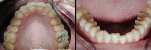 Clinical case to illustrate the difficulties of attributing diagnosis of tooth wear. This example of severe tooth wear was thought to be attrition, superimposed on erosion, of the occlusal surfaces of posterior teeth and palatal surfaces of maxillary teeth