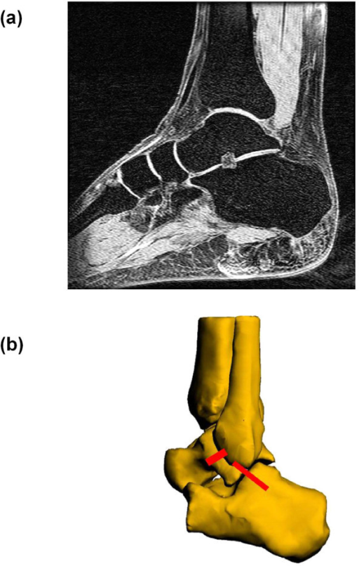 (a) MR image of the ankle joint complex (AJC) used to create a three-dimensional virtual model (b) 3D model of the AJC with anterior talofibular ligament (ATFL) and calcaneofibular ligament (CFL).