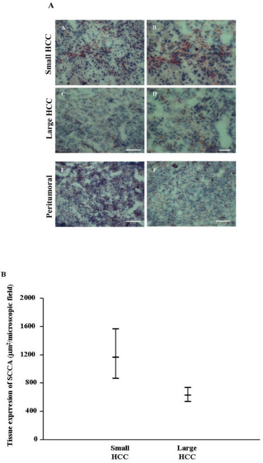 Tissue expression of SCCA. In Figure 1A, immunohistochemistry of SCCA in small and large HCC at low (A, C) and high (B, D) magnification. Paired peritumoral tissue at low magnification of small (E) and large (F) HCC. In A, C, E and F scale bar = 100 μm, in B and D scale bar = 50 μm. In Figure 1B, 95% Confidence intervals of neoplastic tissue SCCA in the different HCC patients groups.