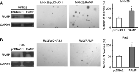 Overexpression of RAMP promoted cell colony formation in soft agar assay. (A) MKN28 and (B) Rat2 were stably transfected with RAMP-expressing or empty vectors. Expression of RAMP in transfected cells was confirmed by western blotting. Assays were performed in triplicate for three times. Quantitative analyses of colony numbers are shown as values of mean±s.d.; *P<0.05.