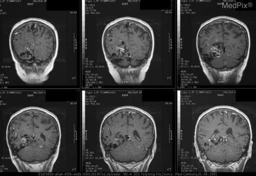 T1 weighted images display a large serpingious area of flow voids in the right temporal-occpital area. It extends superiorly into the parietal area. Some mass effect is present with a right to left shift along the posterior falx. The right transverse and sigmoid sinus appear enlarged, likely due to increased outflow from the lesion.
