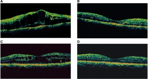 Changes in the OCT images of representative patient in the intravitreal and posterior subtenon injection groups. In an eye that underwent intravitreal injection, the marked macular edema (A) decreased substantially and the eye showed virtually normal macular configuration at 3 months (B) after injection. In an eye that underwent posterior subtenon injection, the macular edema (C) also decreased substantially with time, and the eye showed virtually normal macular configuration at 3 months (D) after injection.