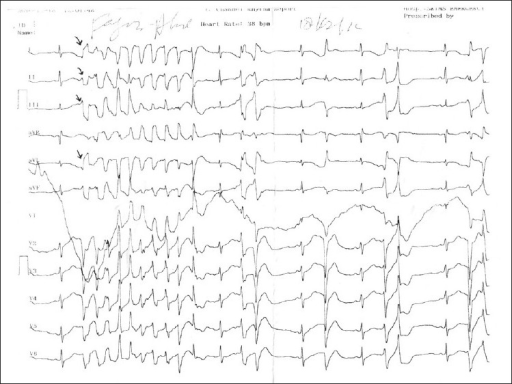 Electrocardiogram of the patient showing frequent ventricular ectopics and a run of nonsustained ventricular tachycardia