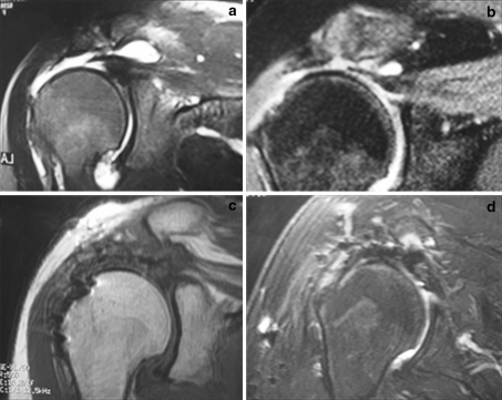 Preoperative coronal T2-weighted magnetic resonance image (MRI) showing complete injury with a 3-cm retraction in 2 patients (a,b). Coronal T1-weighted (c) and T2-weighted (d) MRI sequences showing postoperative findings with tendons repaired, blooming artifacts at footprint, high-intensity tissue at the footprint (c), and high-intensity tissue at tendon–bursa interface (d)