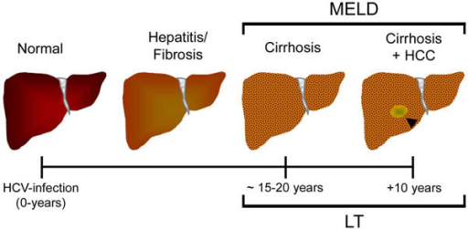 Schematic representation of the liver wound-healing process in HCV infected patients. An arrowhead indicates a hepatocellular carcinoma (HCC) lesion. MELD: Model of End Stage Liver Disease. LT: Liver Transplantation.