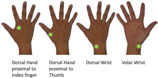 Vibrotactile noise locations. Sensation scores were recorded while remote vibrotactile noise was applied to one of four locations: 1) dorsal hand approximately 2 cm proximal to the index finger knuckle; 2) dorsal hand approximately 2 cm proximal to the thumb knuckle; 3) dorsal wrist, medial to the radial styloid process; and 4) volar wrist, medial to the radial styloid process. Noise intensity was set to 40%, 60%, or 80% of the sensory threshold for each location for each stroke survivor.