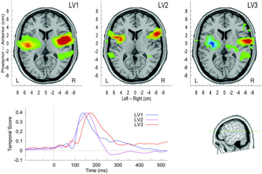 Spatio-temporal brain activation patterns corresponding to the three largest latent variables. The amplitudes of the waveforms and the scale of the activation maps are normalized. The latent variables contributed differentially to the effects of the experimental parameters, LV1 explained 87% of the variance, LV2 12%, and LV3 8%.